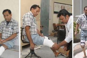 jaipur-foot